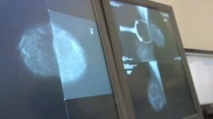 Prévention Santé : L'importance du dépistage pour les cancers féminins