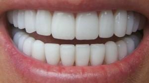 Comment est-on remboursé par sa complémentaire pour les soins dentaires ?