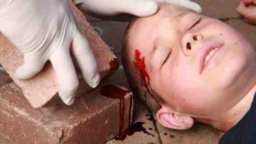 Accidents domestiques : 80% des parents s'estiment capables d'apporter les premiers secours à leurs enfants
