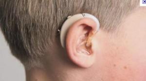 Santéclair propose un réseau de partenaires élargi pour s'équiper de prothèses auditives à moindre coût