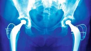 Ostéoporose : Prise en charge des traitements