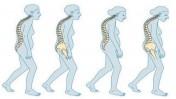 Ostéoporose : Remboursement des tests de dépistage