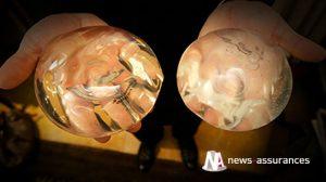 Prothèses PIP: 4.500 victimes seront indemnisées par l'assureur Allianz